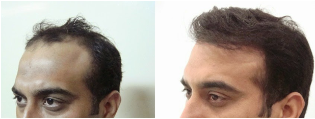 Our Before After Natural Results - All You Need to Know about Fixing Bad Hair Transplants