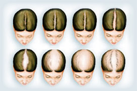 Female Pattern - Female Hair Loss