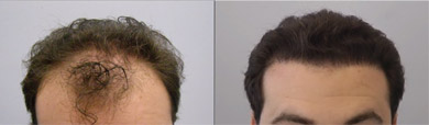 Results1 - Male Hair Loss