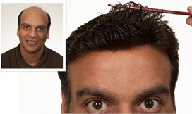 Results2 - Male Hair Loss