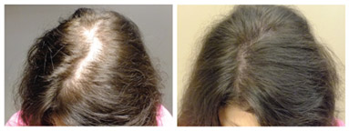 femal Results - Female Hair Loss