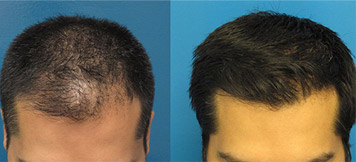 prp Results1 - PRP Therapy for Hair Loss