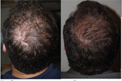 prp Results2 - PRP Therapy for Hair Loss