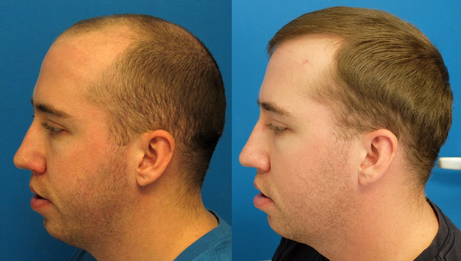 Hair Transplant in Chandigarh 1 - What are the Advantages Of Hair Transplantation Surgery?