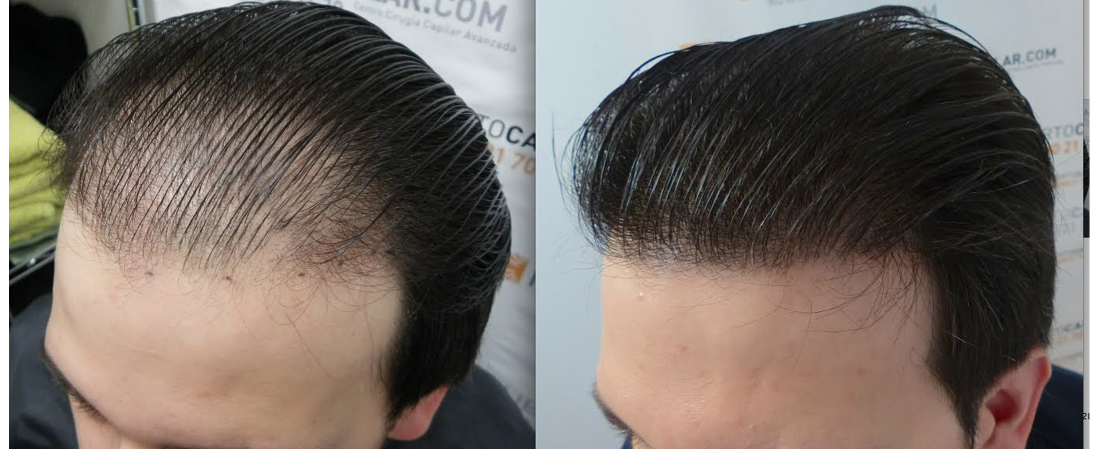 Hair Transplant in Chandigarh 10 - Why Do Women Suffer From Hair Loss Problem?