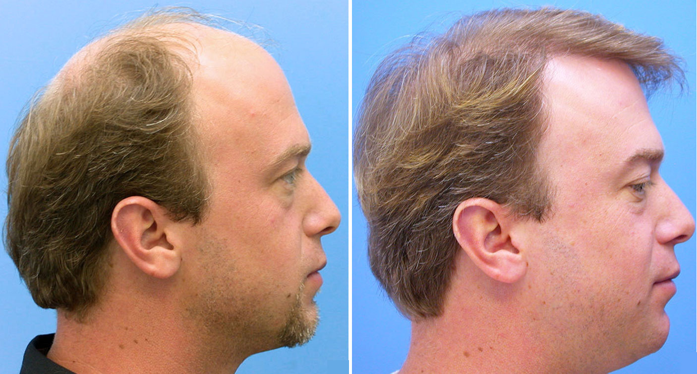 Hair Transplant in Chandigarh 2 - What are the Advantages Of Hair Transplantation Surgery?
