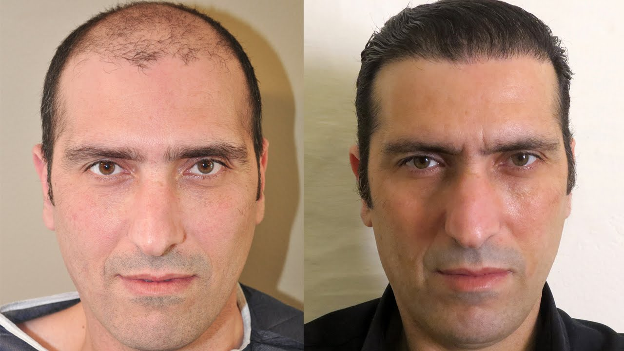 Hair Transplant in Chandigarh 3 - What Is The Cost Of A Hair Transplant Surgery?