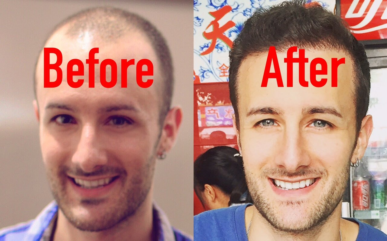 Hair Transplant in Chandigarh 4 - What Is The Cost Of A Hair Transplant Surgery?