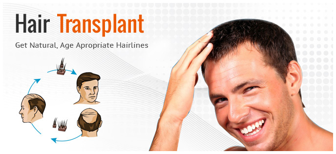 Hair Transplant in Chandigarh 6 2 - Is Hair Transplant a Good Means to Get Hair Back?