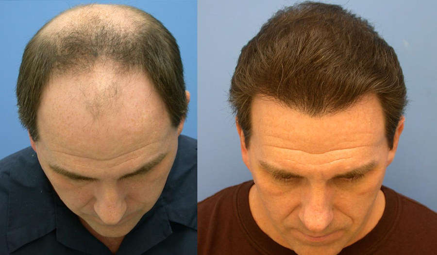 Hair Transplant in Chandigarh 7 - What to Expect After A Hair Transplant Surgery