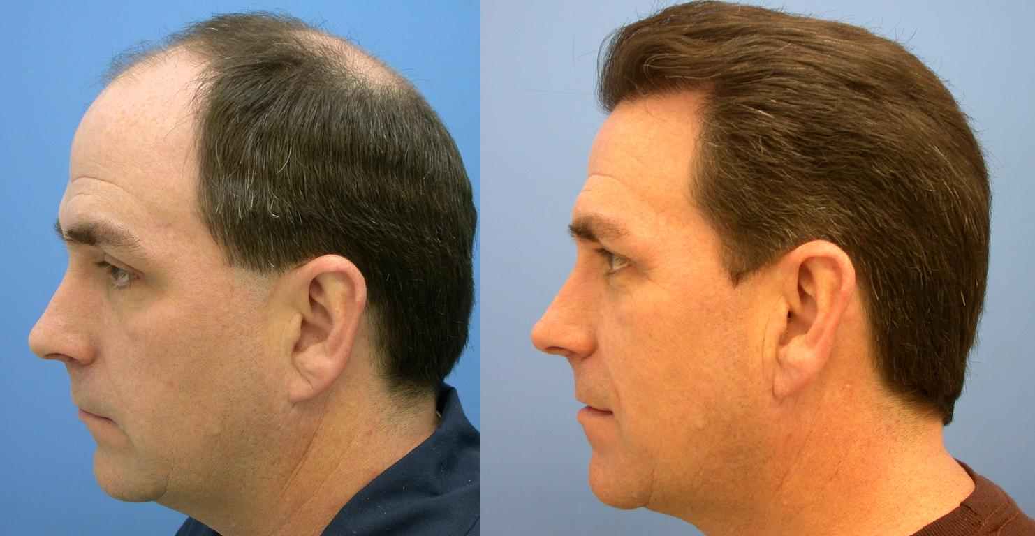 Hair Transplant in Chandigarh 9 - Why Do Women Suffer From Hair Loss Problem?