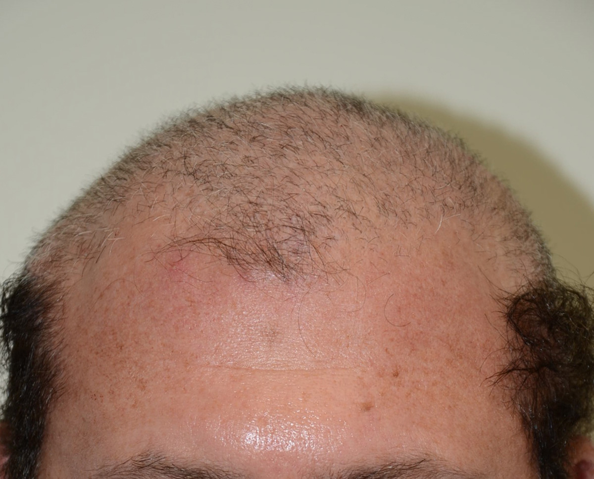 Hair Transplants Chandigarh 13 - Avoid Baldness In Simplest Possible Way