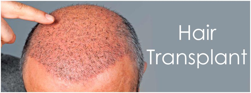 hair transplant Athena 2 - What To Consider For A Hair Transplant In Chandigarh?