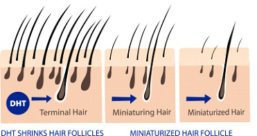 Causes of Male Hair Loss - Male Hair Loss