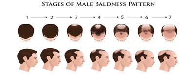 Male Pattern - Male Hair Loss