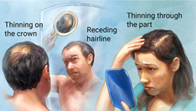 comb 1 - Male Hair Loss