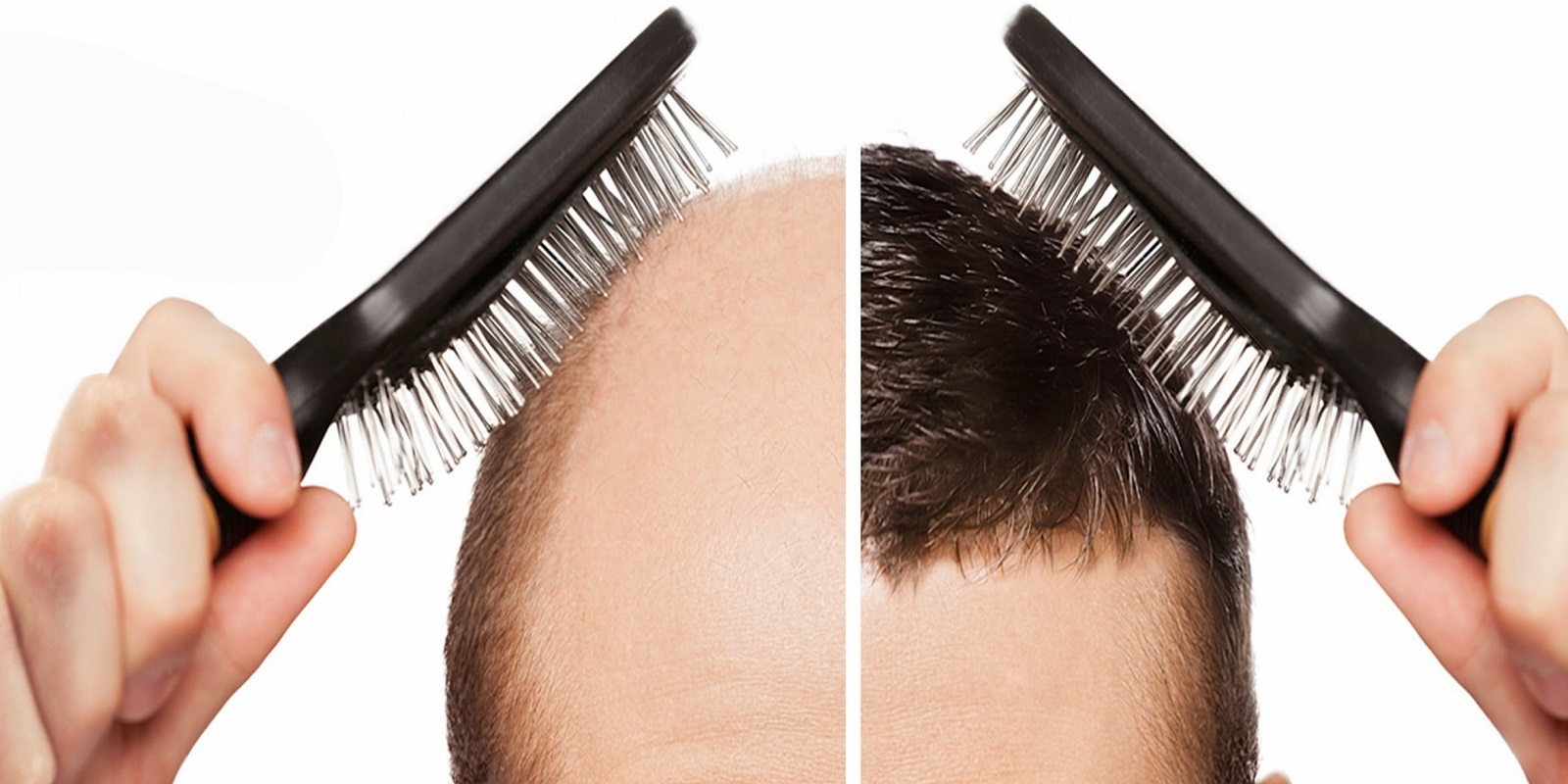 Hair Transplant in Chandigarh 2 1 - Get Your Hair Back With Hair Transplant