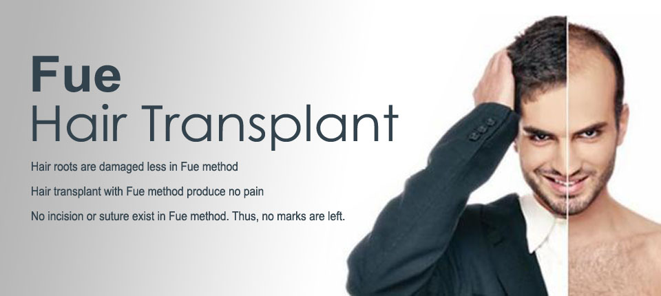 Hair Transplant in Chandigarh 4 1 - Why One Should Opt For Hair Transplant?