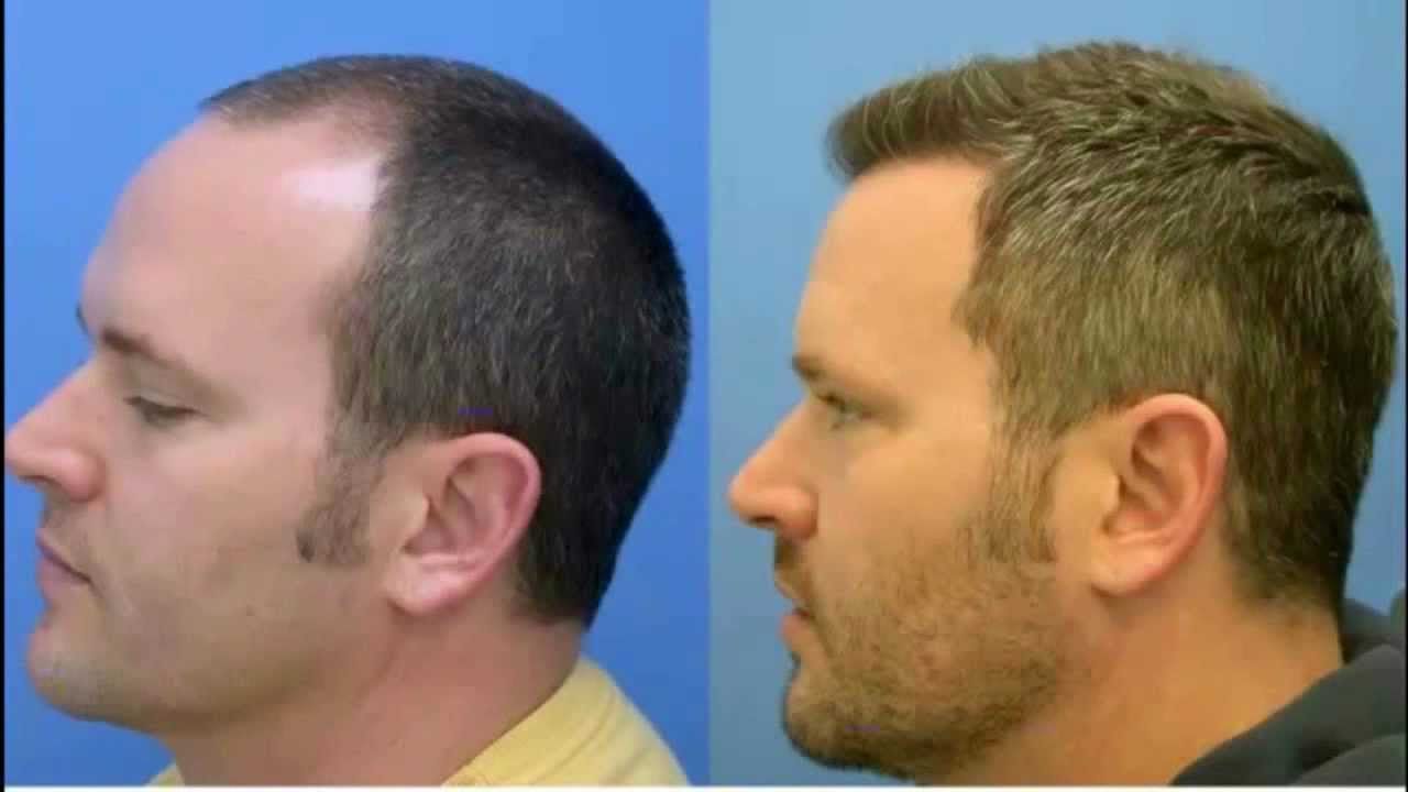 Why Go For Best Hair Loss Treatment In Chandigarh