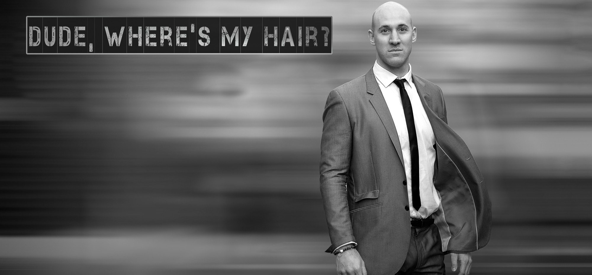Hair Transplants Chandigarh 5 1 - Restore Hair Over The Bald Spots With FUE Hair Transplants